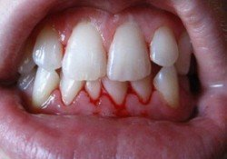 Natural Ways To Cure Gum Bleeding