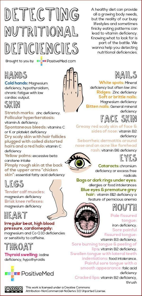 Nutritional Deficiencies