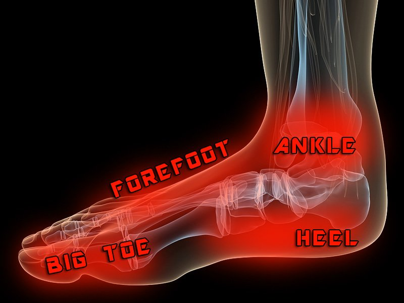 Causes and Treatment of Foot Pain